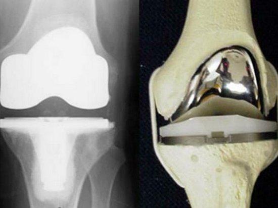 Протезами коленного сустава анатомия человека количество суставов